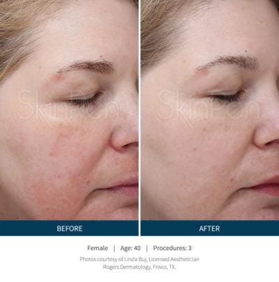 SkinPen® Microneedling Fort Worth | Kalos Medical Spa