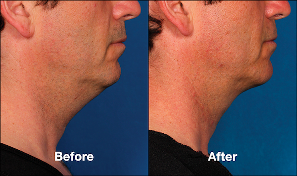 Kybella for Men   Reduce a Double Chin & Refine Your Jawline   Kalos