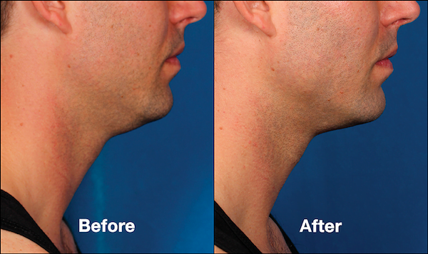 Kybella for Men | Reduce a Double Chin & Refine Your Jawline