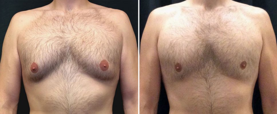 coolsculpting-18505a-male-chest-kalos copy