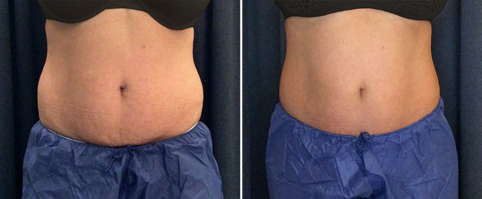 coolsculpting-18562a-kalos-tummy copy