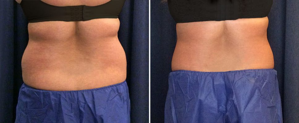 coolsculpting-18570d-kalos-rear-flanks